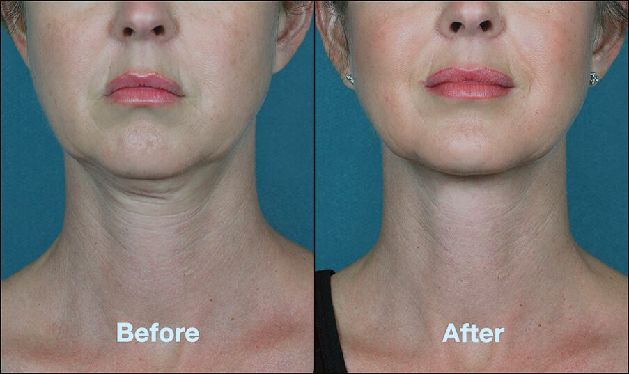 Kybella Treatment Tackles Double Chins