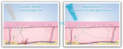 Dermal Filler without brusing, pain or down time using Microcannulas