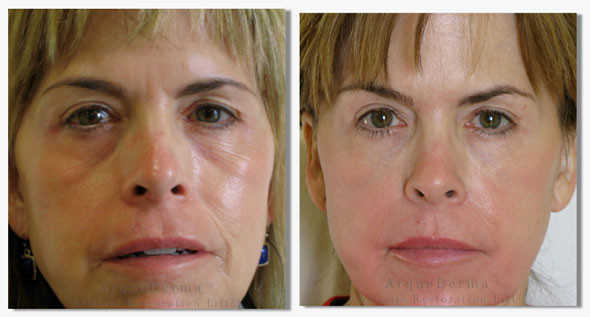 Before-and-after-photos-arquederma-590-web-14