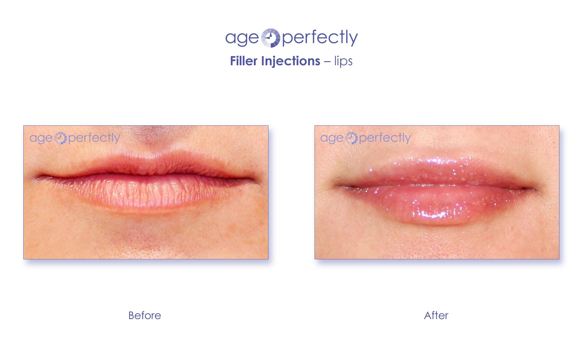 filler lips